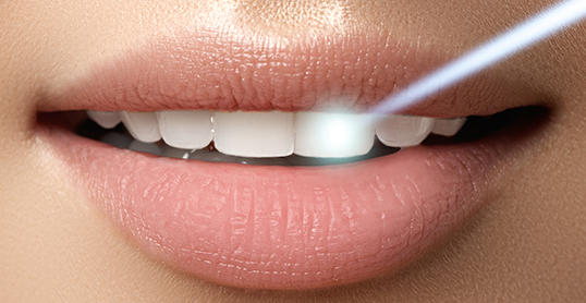Stock image of laser therapy for teeth