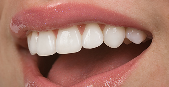 Stock image of Veneers