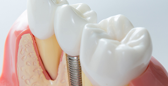 Stock image of dental implants