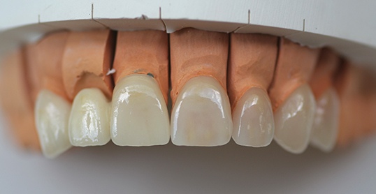 Stock image of dental bridges
