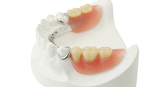 Stock image of partial dentures