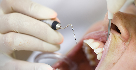 Stock image of a periodontal screening